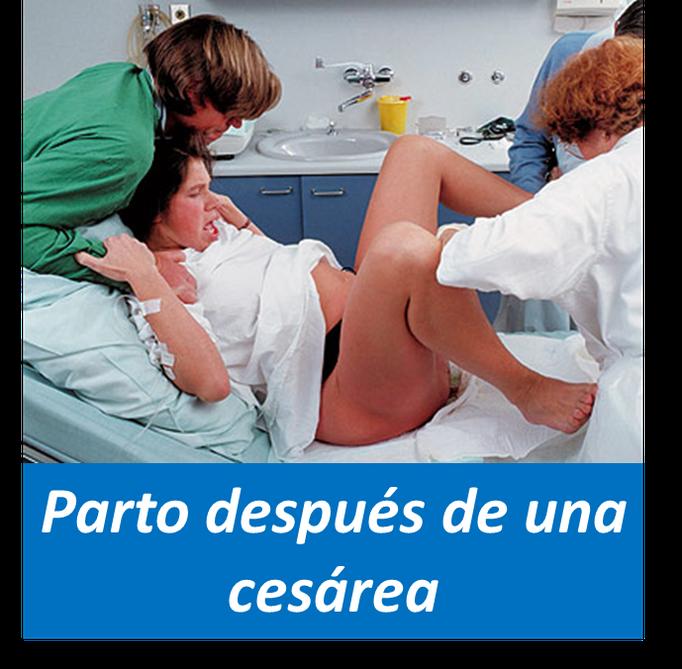Parto después de una Cesarea