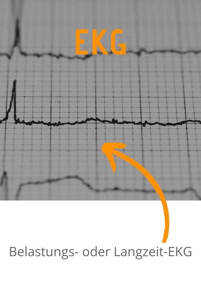 EKG; Belastungs- oder Langzeit-EKG