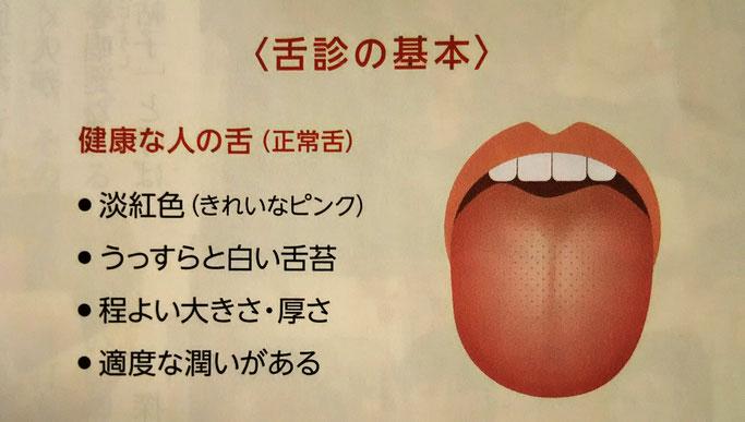 大分市 みつか漢方養生堂 漢方相談 舌診 苔