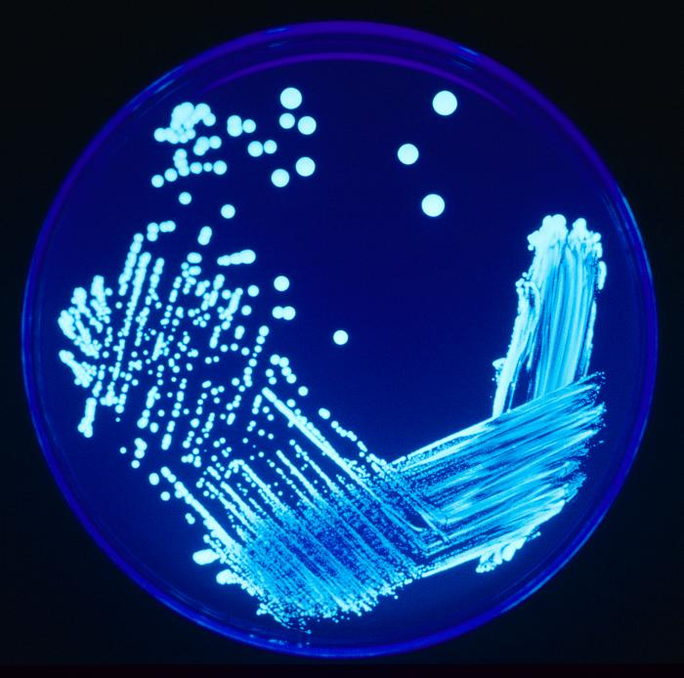Legionella incident sometimes happens in spas and swimming pools in Japan source: wikipedia