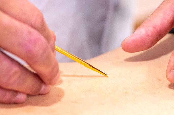 鍼灸治療院 東洋医学