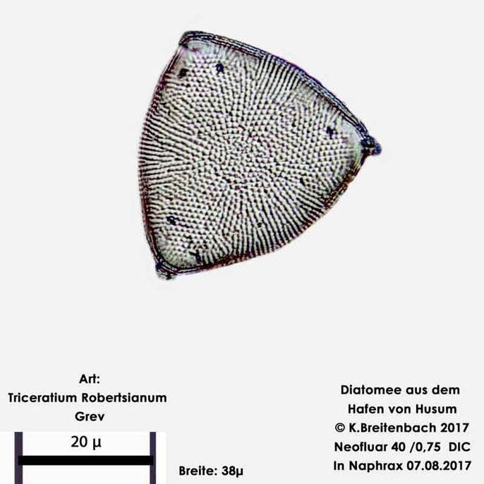 Bild 16 Diatomee aus dem Hafen von Husum Art: Triceratium robertsianum Greville
