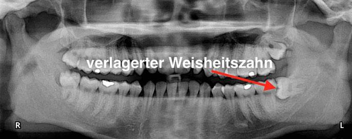 Röntgenbild eines verlagerten Weisheitszahnes 38