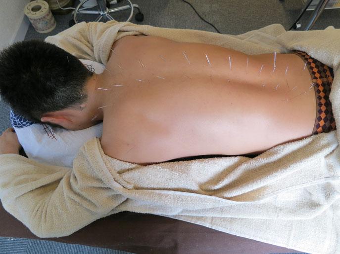 脊柱周りへの刺針