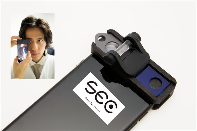 スマホアタッチメント型医療機器「Smart Eye Camera(SEC)」