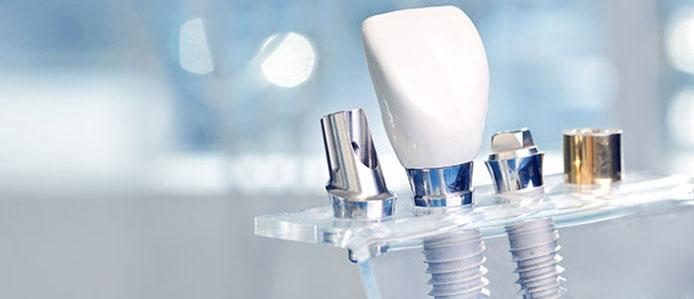 Дентална имплантология, спешна стоматологична помощ в София, дежурен зъболекар