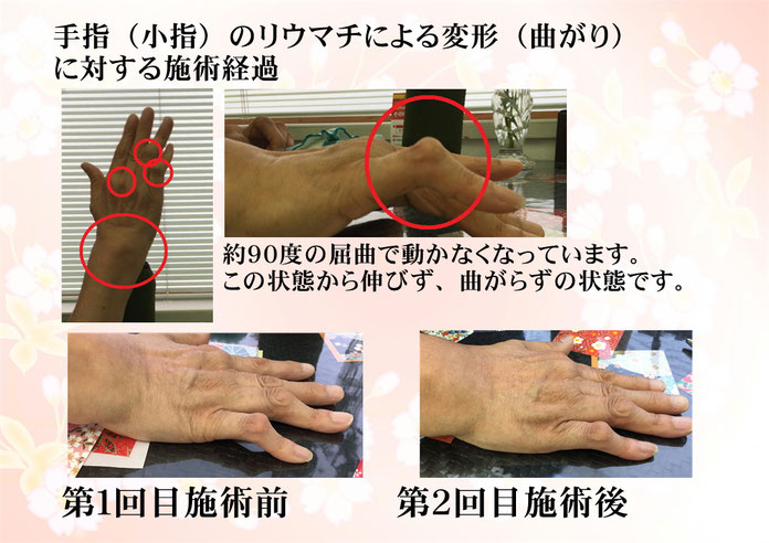 関節リウマチで指が動かず痛いとき、少しずつでも動きだすようになる場合もあります 指の関節が動かないときご相談ください 長崎市の整体術治療院 掌庵。