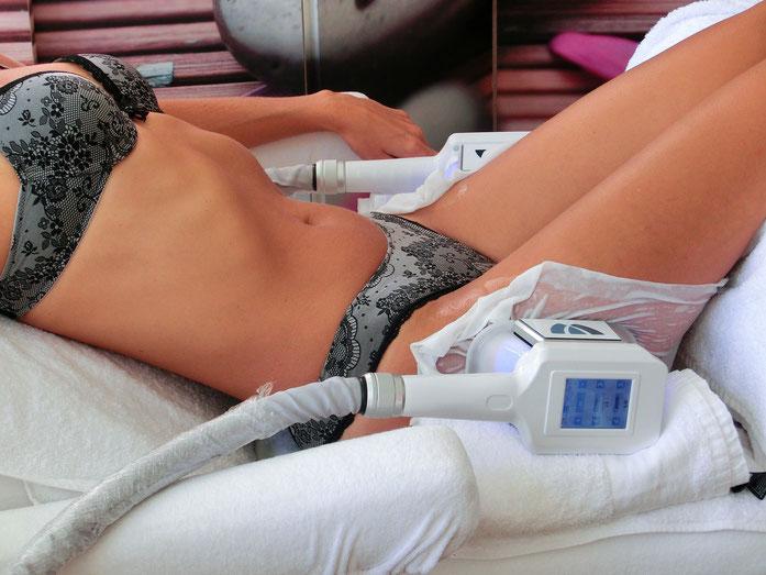Kryolipolyse-Behandlung bei Reithosen-Pölsterchen