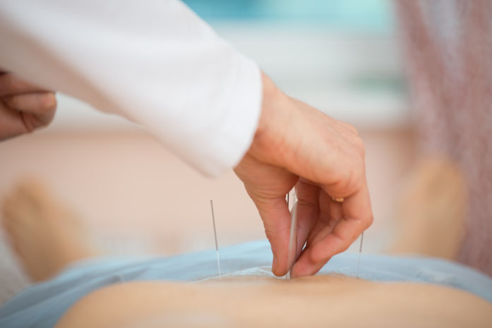 Lui Yeung Acupuncture