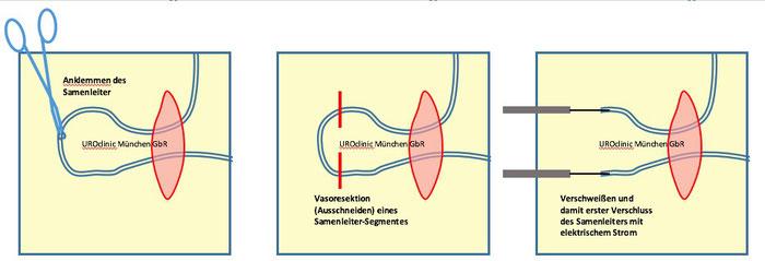 Vasektomie und Vasoresektion in München Teil 2