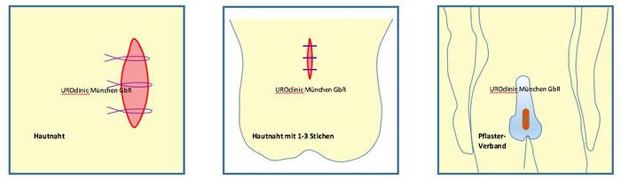 Vasektomie und Vasoresektion in München Teil 4