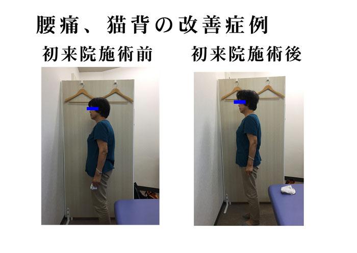 猫背矯正は実はお腹の奥…インナーマッスルで変わります 筋膜調整なら長崎市の整体術治療院 掌庵。