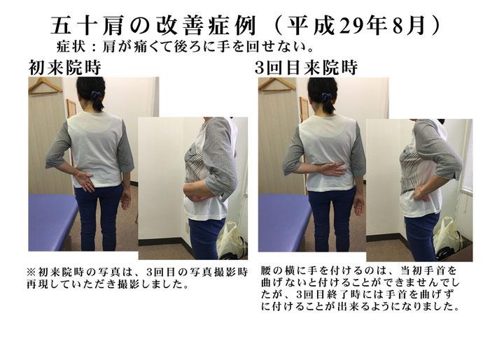 五十肩(肩関節周囲炎)で手を後ろに回せない 少しずつなら…… 肩の痛みの時には長崎市の整体術治療院 掌庵。