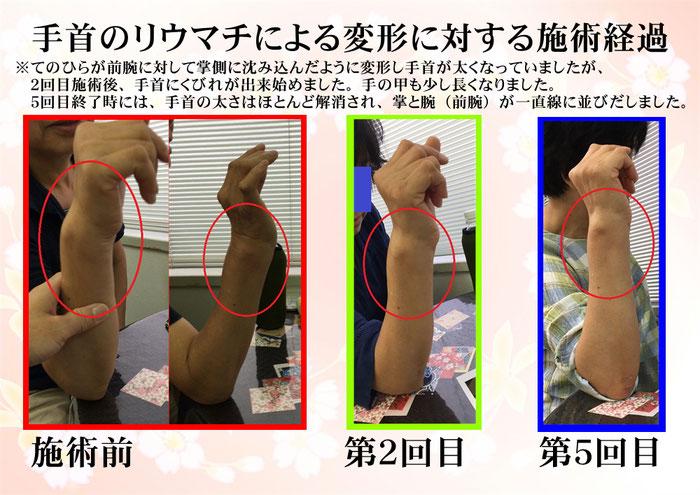 手首の痛み、動かないときには 長崎市の整体術治療院 掌庵へ。