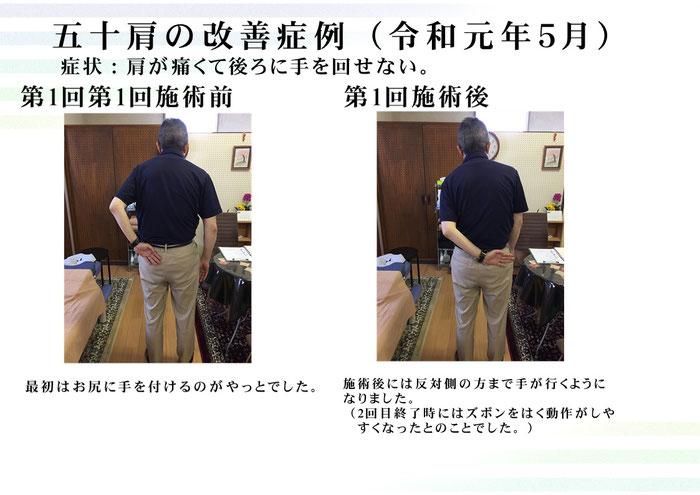 手が後ろに回らない。長崎市で肩関節周囲炎(四十肩・五十肩)と言えば整体術治療院掌庵!