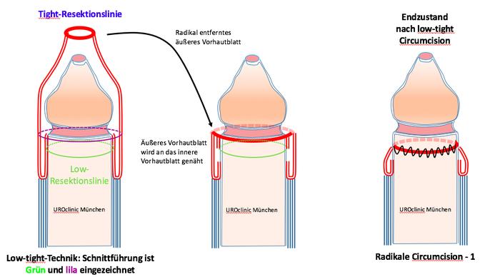 Beschneidung Zirkumzision: Low-tight Technik