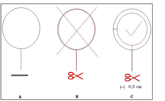 Fig. 7 : ouverture du col et de l'amigaut