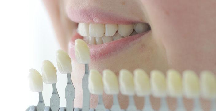 Zähne sind nicht weiß, sondern zahnfarben. Mal heller, mal dunkler.