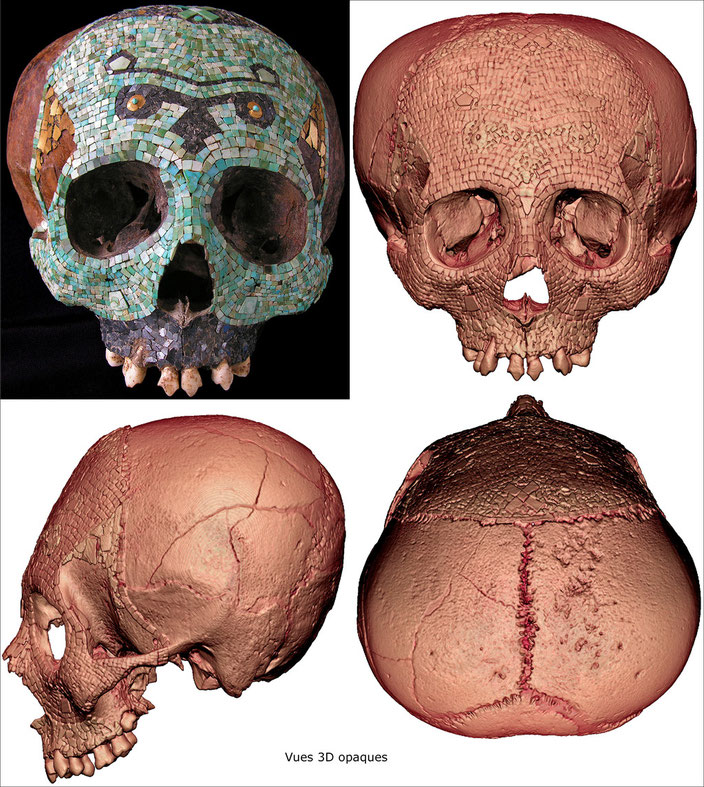 Human skull decorated with a polychromic mosaic • Mixtec-Aztec, Mexico • 1300-1521 A.D. • Tessels of turquoise, hematite and tumbaga gold sheets • H. 14.5 cm • Private collection