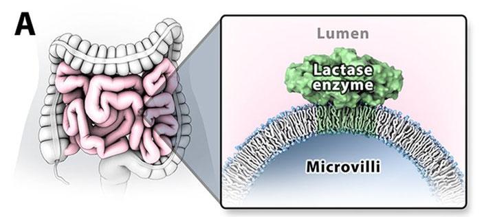 Das Lactase-Enzym sitzt an der Darmoberfläche. Wenn die Darmwand geschädigt wird, ist auch automatisch weniger Lactase vorhanden, was zu einer sekundären Laktoseintoleranz führen kann.