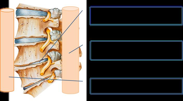 腰椎や椎間板の変形は腰を不安定にし腰痛の原因になることがあります