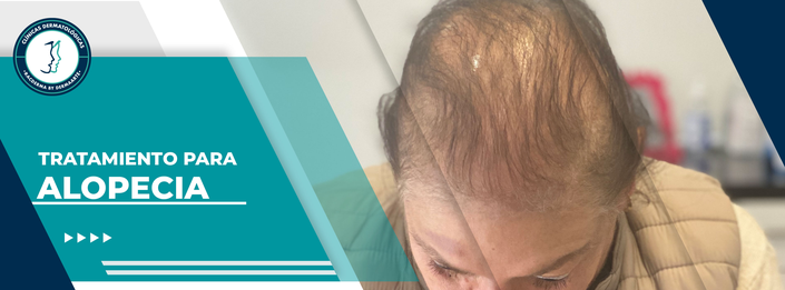 caída de cabello, caída de cabello mujeres, caída de cabello hombres, tratamiento para la caída de cabello,