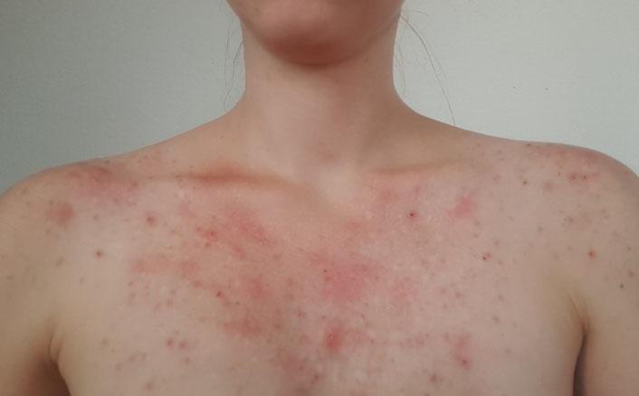 Lebenszeichen aus Cottbus Hautbild und Skin Picking Mitte Juli