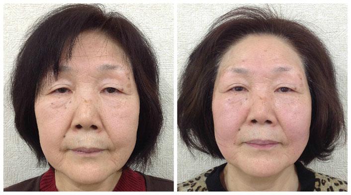 左が施術の前、右が10回終了時のお顔です。どちらもノーメイクなのに、透明感が全然違いますね。