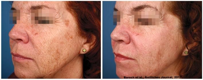 Entfernung von Altersflecken und Reduktion von Fältchen mit fraktionalem Laser und PDT nach einer Behandlung