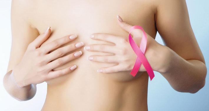 Brustkrebs-Bild
