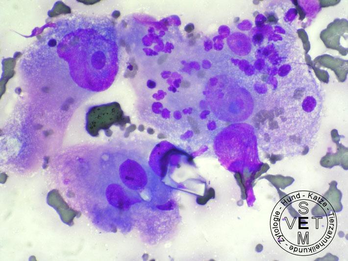 Maligne Histiozytose