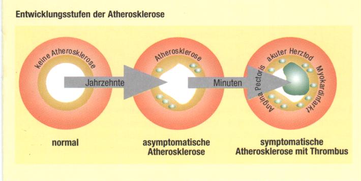Aus: Cholesterin: Oft zu viel aber nie zu wenig. Copyright Bestfoods Ernährungs Forum 1999