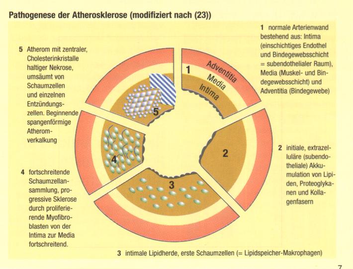 Cholesterin: Oft zu viel aber nie zu wenig. Copyright Bestfoods Ernährungs Forum 1999