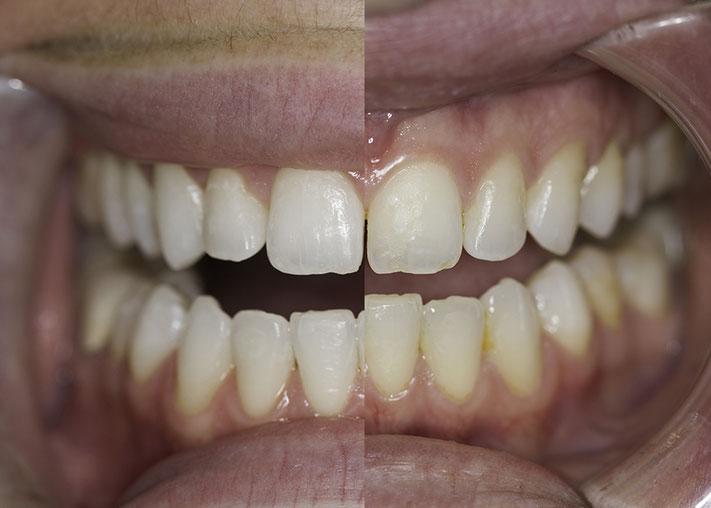 Vorher / Nachher Bild Zahnbleaching mit Unterstützung von Ultradent Boost.