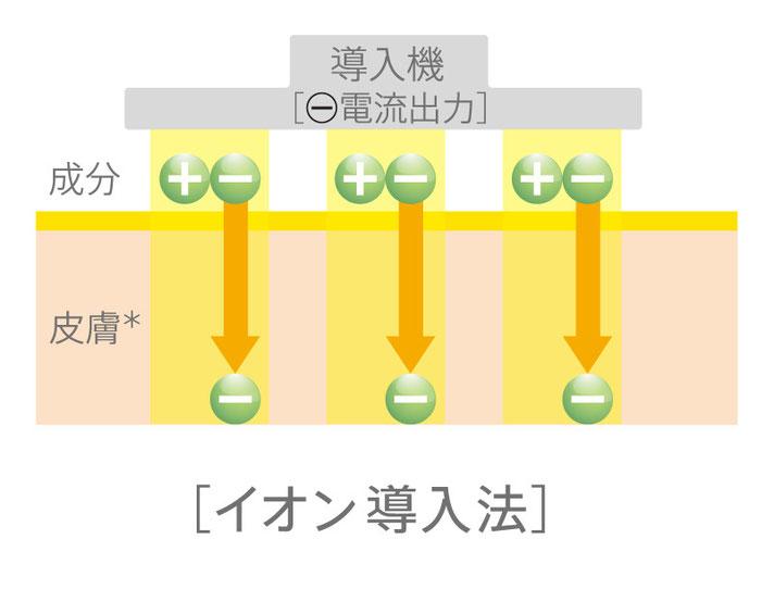 イオン導入法