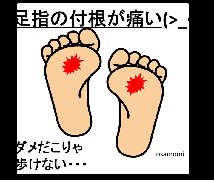 足指の付根が痛い!足膝専門の昭島市オサモミ整体院。