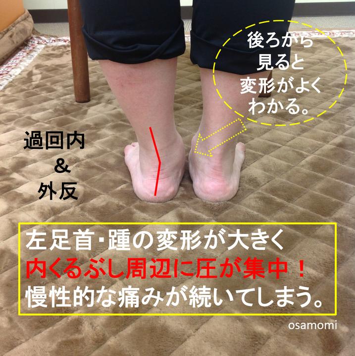 内くるぶしの下が痛い!足・膝専門 昭島市のオサモミ整体院。