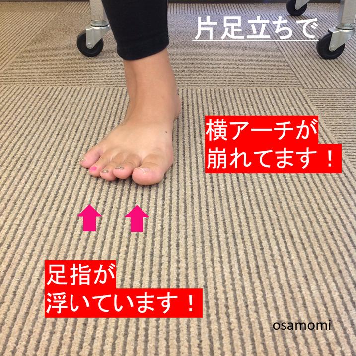 浮き指は、足膝専門、昭島市のオサモミ整体院。