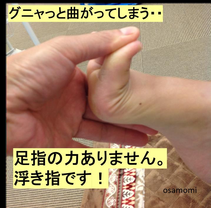 浮き指は、歩くとフラフラする。昭島市のオサモミ整体院。