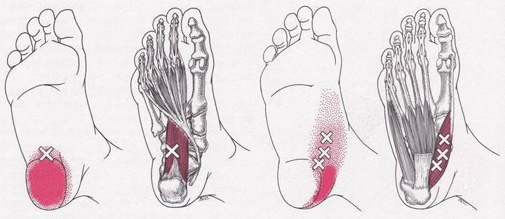 足底方形筋・母指外転筋のトリガーポイント