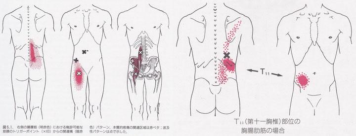腸腰筋・腸肋筋のトリガーポイント