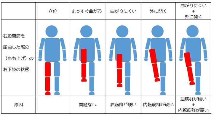 股関節屈曲制限