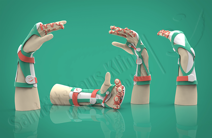 Armorthese Handorthese Orthese Kleinert-Schiene 3D-Druck atmungsaktiv WHO HO Unfall Beugesehnenriss Sanitätshaus Klinz Bernburg