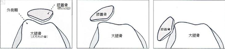 膝蓋骨(膝のお皿)の形状