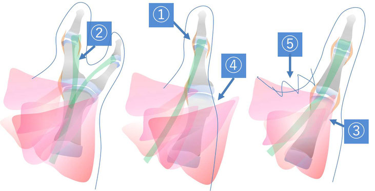 母指多指症の手術概要