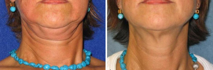 Doppelkinn vor und nach zwei Injektionsbehandlungen