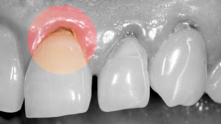 Le tartre dentaire parosph re - Comment enlever le tartre ...