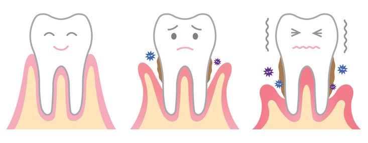 ParoSphère | La parodontite (déchaussement des dents). Crédit photo: © m0622.