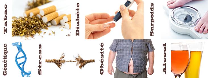 Facteurs de risque des parodontites ©ParoSphère