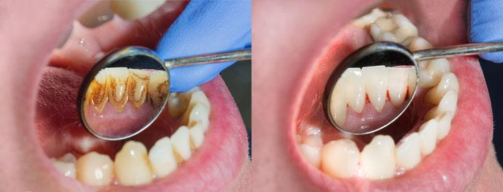 Zahnstein und Verfärbungen vor der Zahnreinigung - weisse, glatte Zähne nach der Zahnreinigung